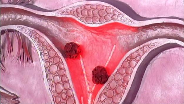 Рак матки - ЗдоровьеИнфо