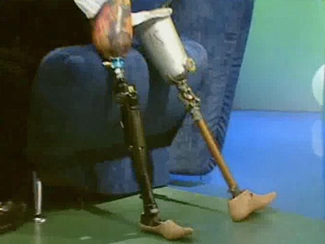 Как сделать своими руками протез на ногу
