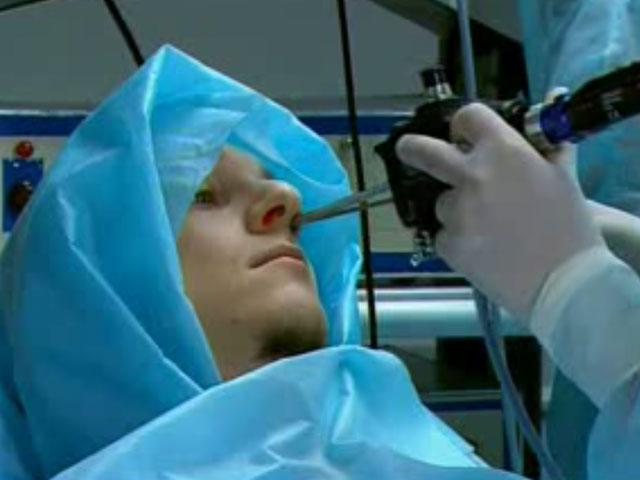 Функциональная эндоскопическая синус-хирургия при рецидивирующем полипозном риносинусите под навигационным контролем (выполняет ассистент панякина ма