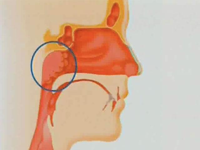 Enlarged Tonsils Adult 36