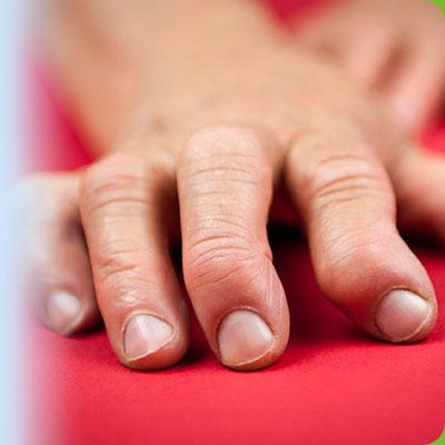 Сайт здоровье ревматоидный артрит