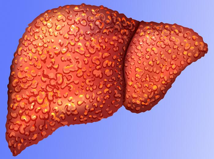 Что такое неалкогольная жировая дистрофия печени? — ЗдоровьеИнфо