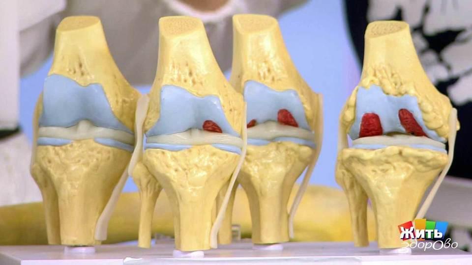 Изображение - Плазмопунктура коленного сустава елена малышева 474571_big_b333304f9a