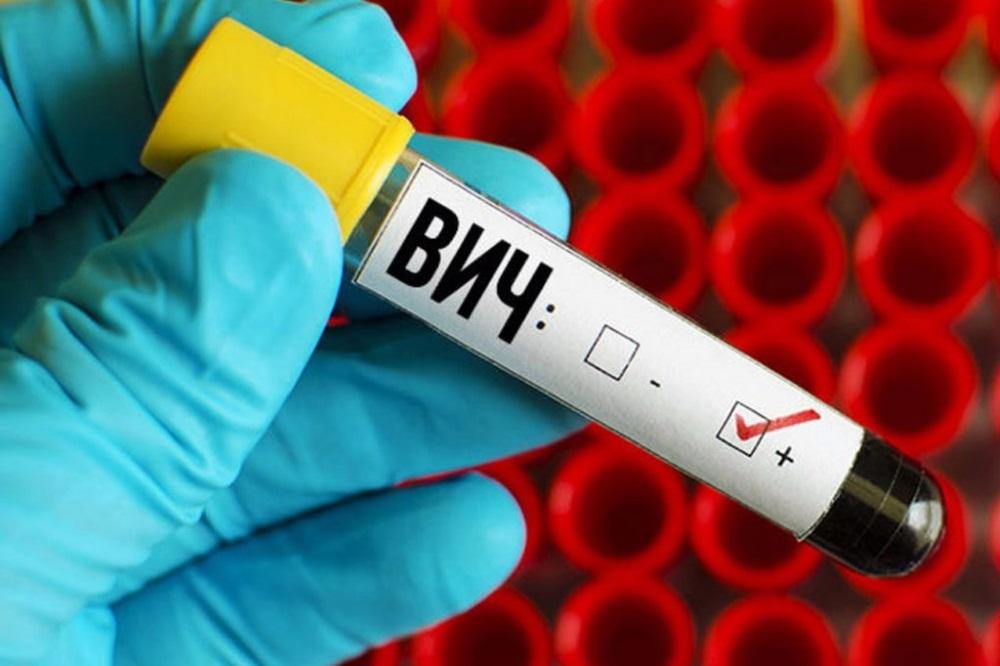 ВИЧ/СПИД: вопросы, которые вы хотели задать, но боялись спросить
